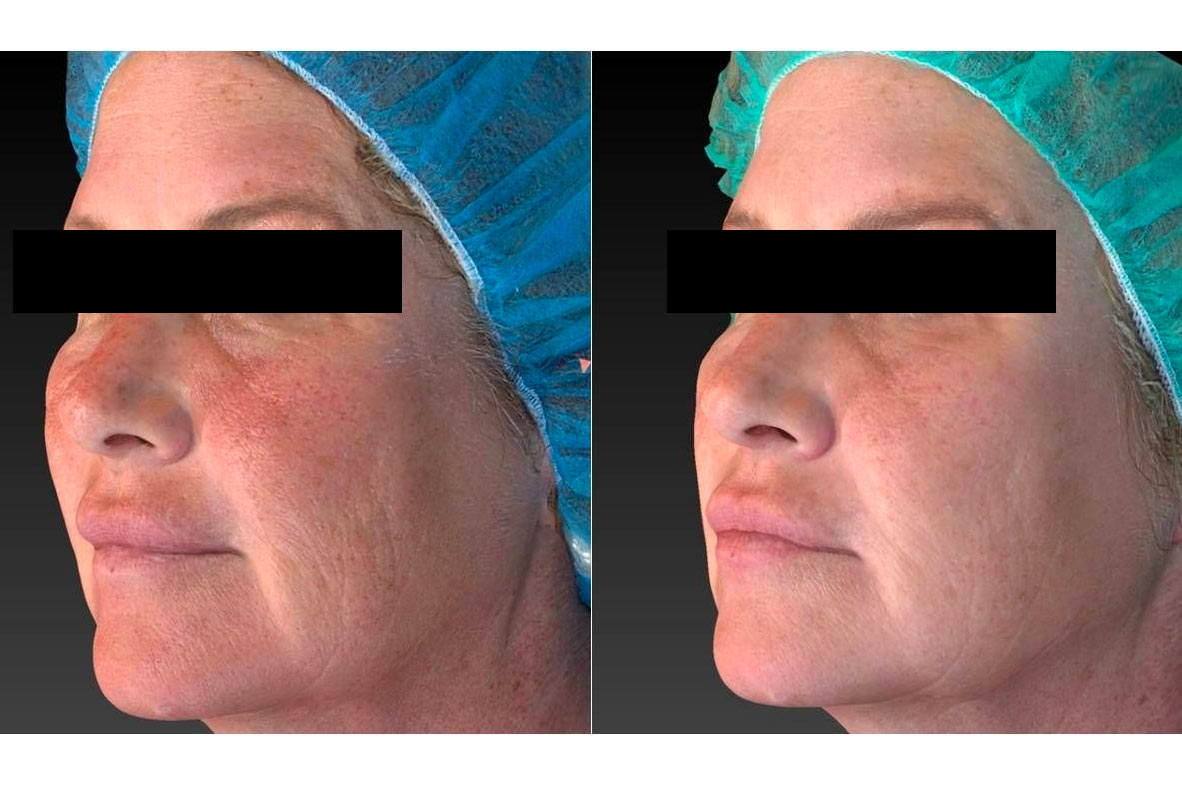 Vivace RF Needling - before and after image 001