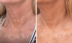 SkinTyte-neck1